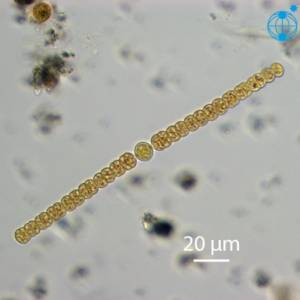 Une cyanobactérie, Alexandra anabaena © Alfred Wegener Institute for Polar and Marine Research