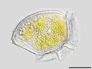 Dinophysis © Alfred Wegener Institute for Polar and Marine Research